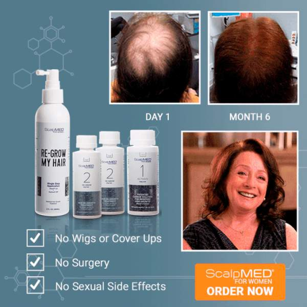 Hair Regrowth System For Women