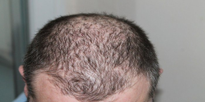 how to reverse hair loss
